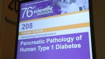 Pancreatic Pathology of Human Type 1 Diabetes Session